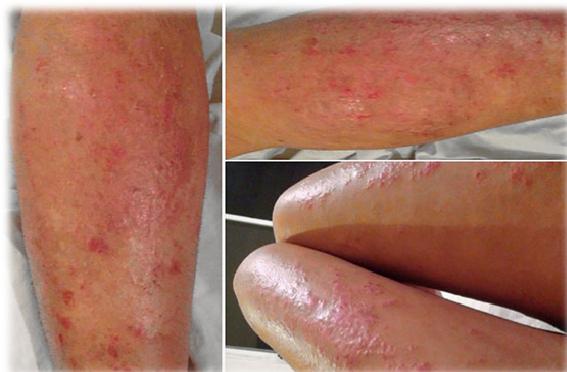 El ungüento que cura para la piel a la eccema