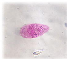 papillomavírussal összefüggő szemölcsök